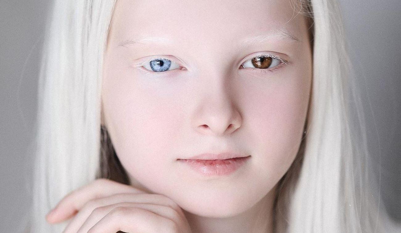 Дівчина-альбінос