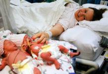 Близнята, які народилися, тримаючи одна одну за руки