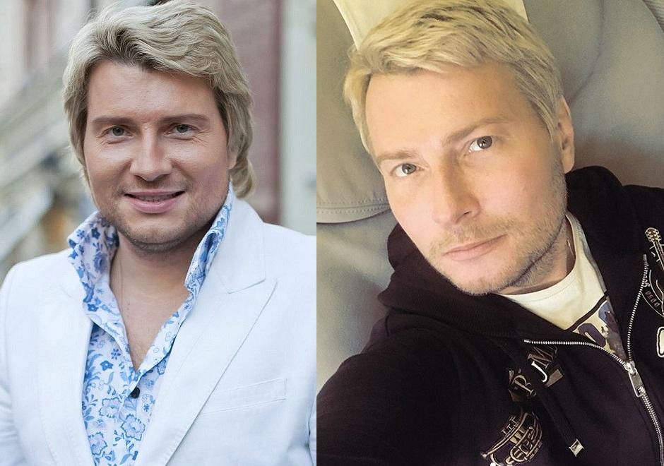 Микола Басков до та після пластики